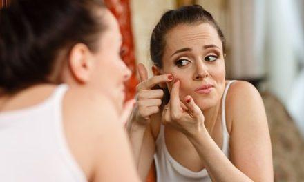 Éliminer les cicatrices d'acné et les boutons