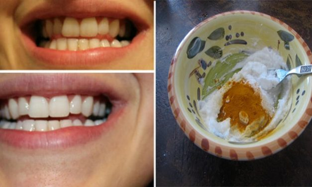 Astuces de grand-mère pour blanchir les dents