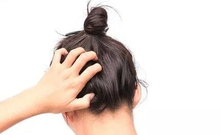 5 remèdes naturels pour soulager les démangeaisons du cuir chevelu