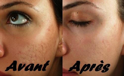 Les meilleurs traitements pour les cicatrices d acné e32320aa56a