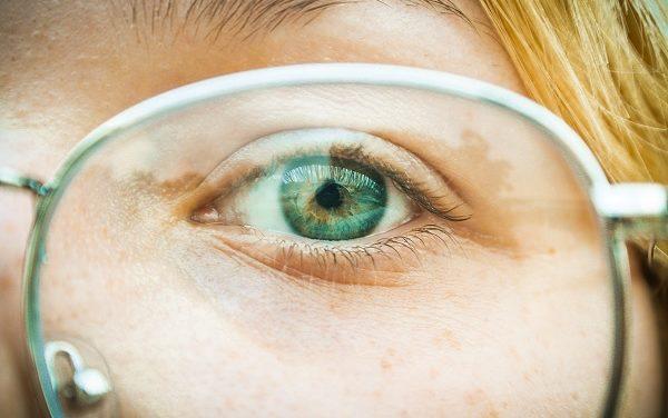Les brûlures des yeux : Causes et remèdes