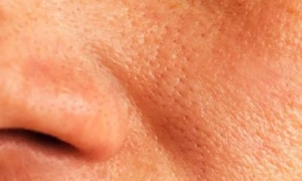 7 remèdes naturels pour réduire les pores dilatés du visage