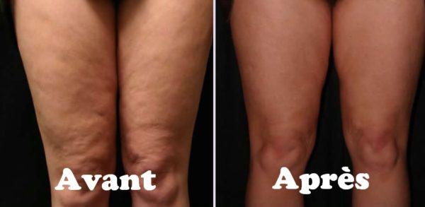 Remèdes naturels pour raffermir la peau relâchée : Exercices pour prévenir le relâchement