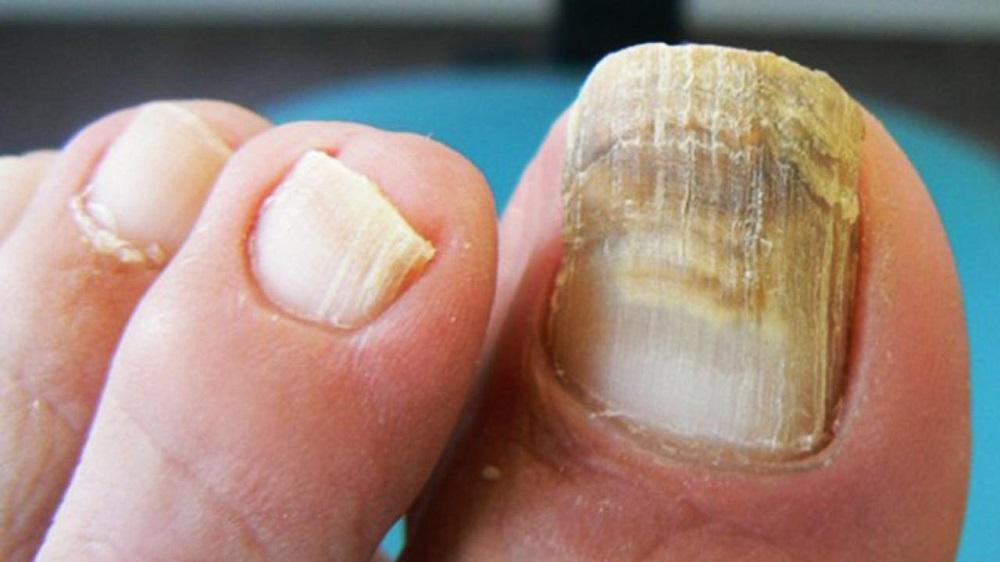 3 Remèdes naturels pour la mycose des ongles : Traitement de la teigne