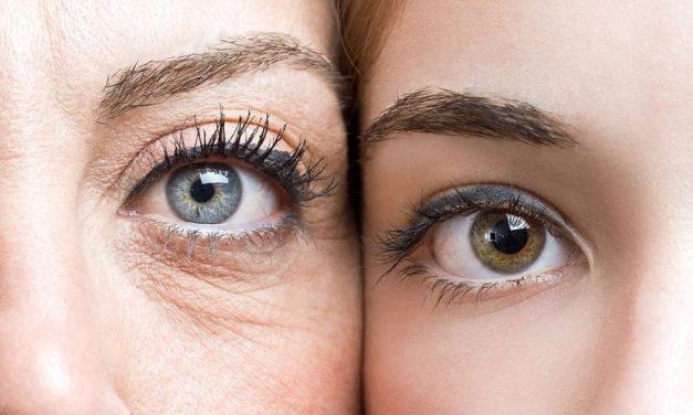 Comment se débarrasser des rides sous les yeux ? Remèdes naturels