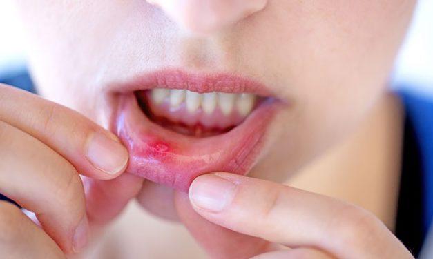 6 moyens naturels pour se débarrasser des lésions buccales