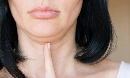 Comment se débarrasser du double menton ? Méthodes naturelles