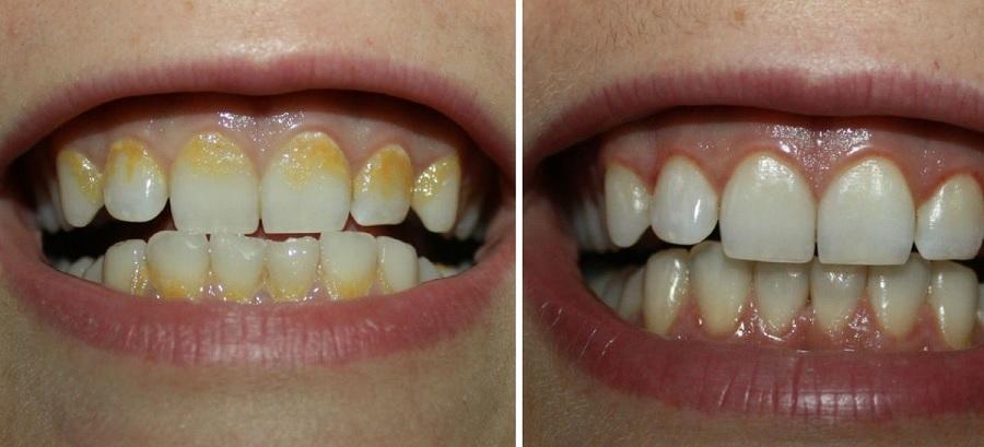 Plaque dentaire : l'enlever et faire un détartrage naturel