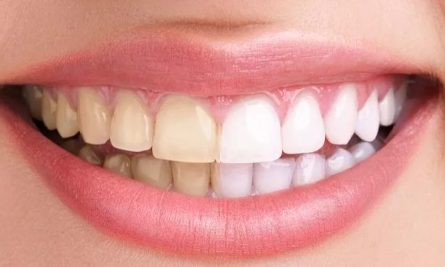 Recettes de dentifrice naturel fait maison pour des dents saines