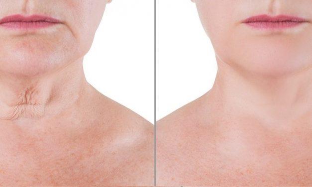 Lifter le cou et le visage sans chirurgie : Eviter le relâchement de la peau