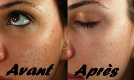 Les meilleurs traitements pour les cicatrices d'acné