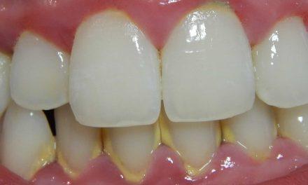 5 Remèdes à la maison pour enlever le tartre dentaire